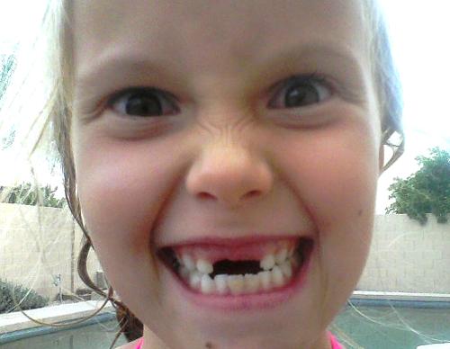 Chloe missing teeth